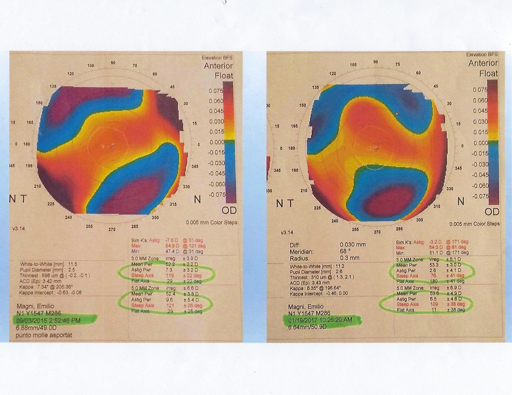 Astigmatism chart